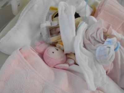 ノーウッド手術後の胸水、乳び胸
