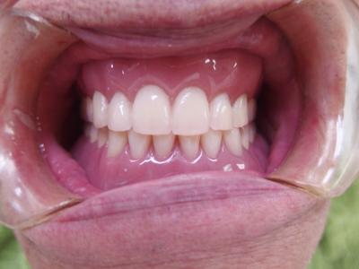 上下総義歯装着口腔内