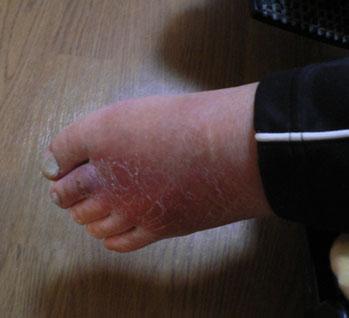 腫れた左足