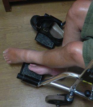現在の左足の様子