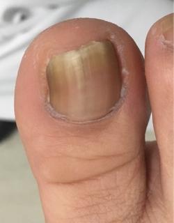 先月から痛みがある ◽ 爪をきるとき深く切っていた ◽ 靴を履くときに痛みがある