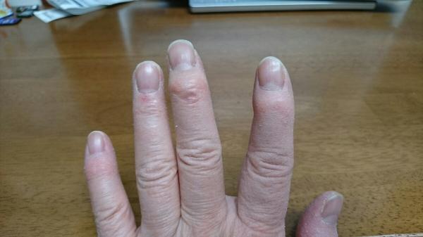 筋 痛 性 多発 症 リウマチ