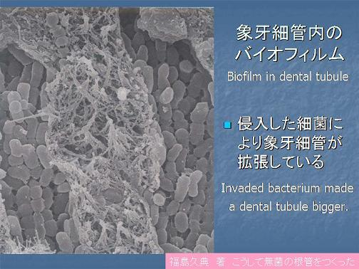 拡張した象牙細管.jpg