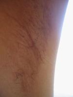 ワキガ手術左脇毛