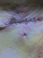 ワキガ手術5