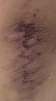 マイクロリーブ法ワキガ手術12日
