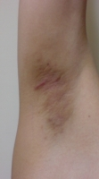ワキガ手術1ヶ月