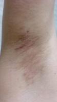 ワキガ手術2ヶ月