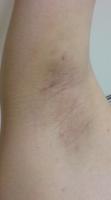 ワキガ手術3ヶ月