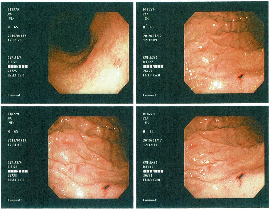 胃カメラ.jpg