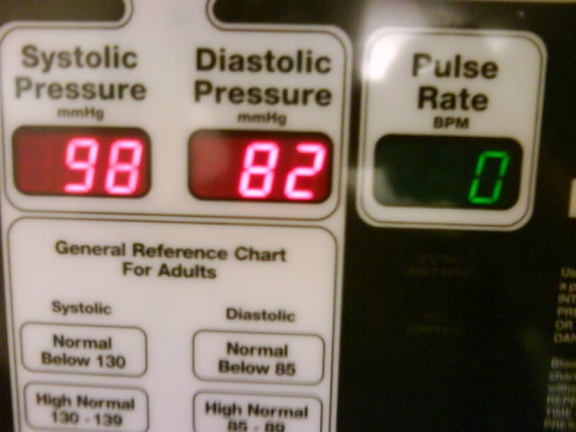 pulse rate 0
