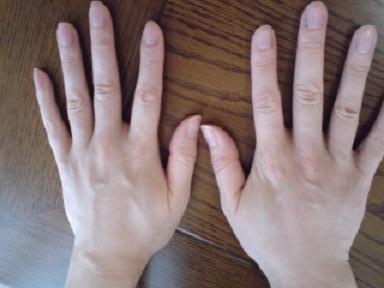 が かゆい 手の甲