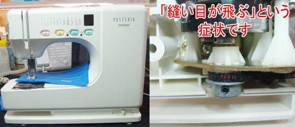 ブラザーミシン修理 パステリアB−100
