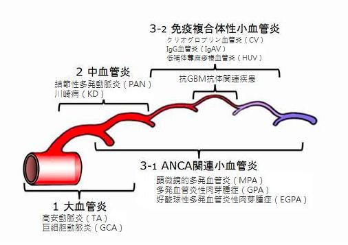 血管炎症候群とは - マイクロスコープ歯科治療 イリタニオフィス(東京)